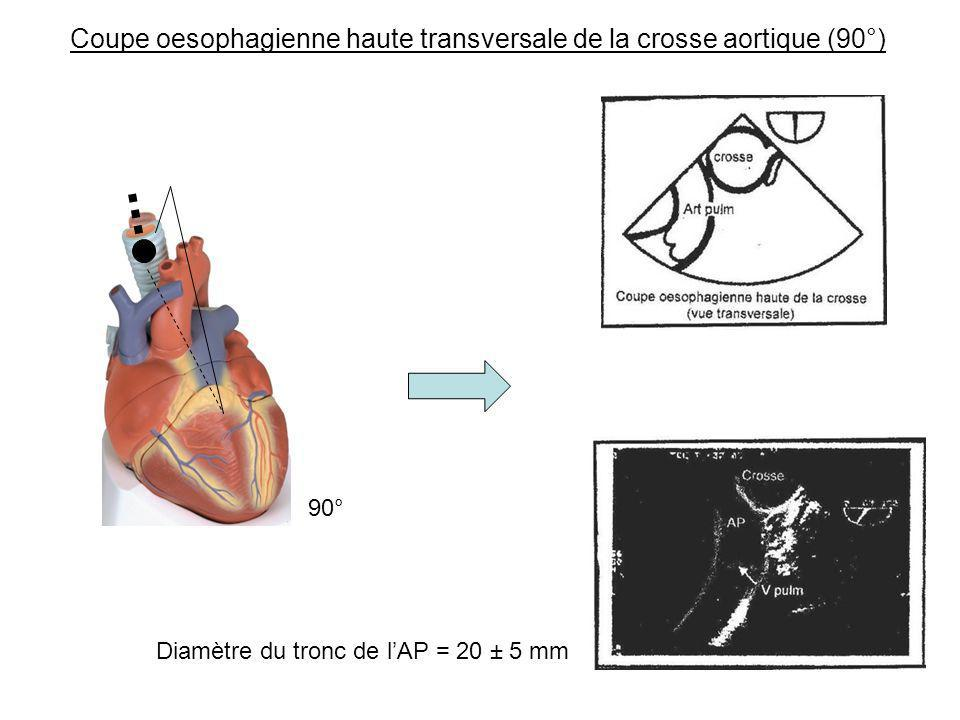Coupe oesophagienne haute transversale de la crosse aortique (90°)