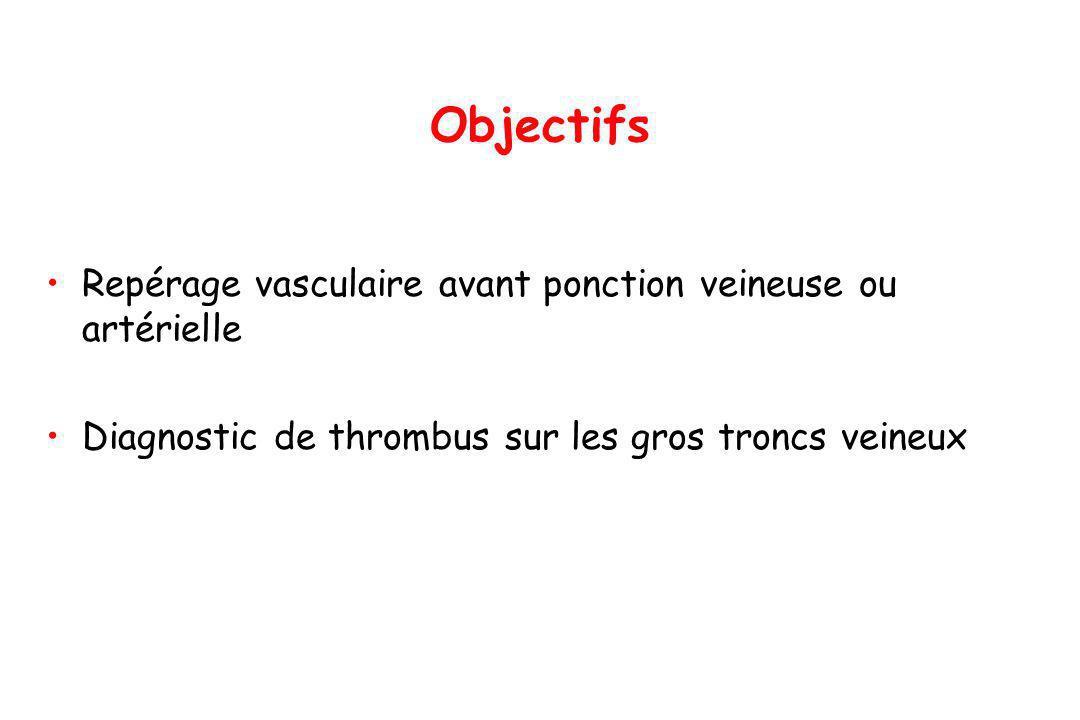 Objectifs Repérage vasculaire avant ponction veineuse ou artérielle