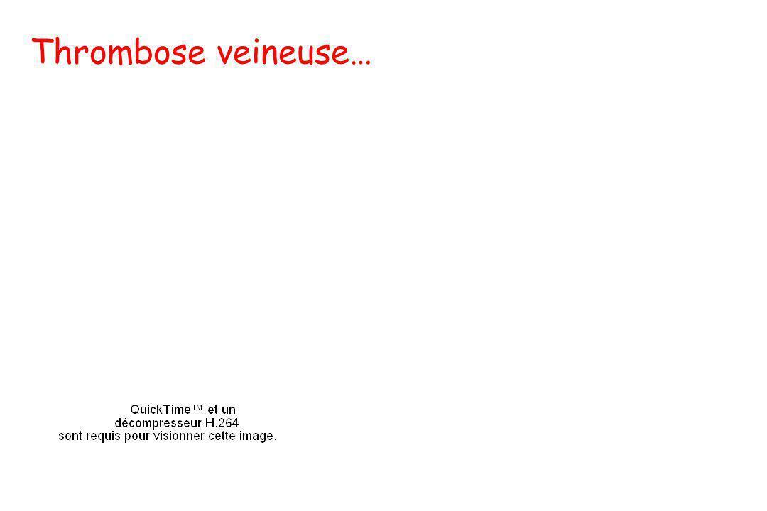Thrombose veineuse…