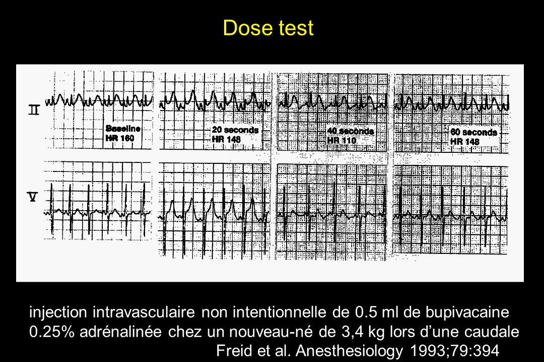 Dose test injection intravasculaire non intentionnelle de 0.5 ml de bupivacaine 0.25% adrénalinée chez un nouveau-né de 3,4 kg lors d'une caudale.