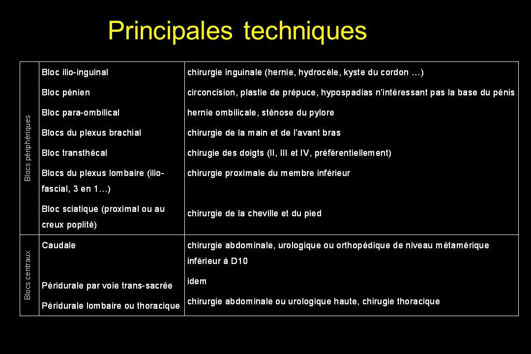 Principales techniques