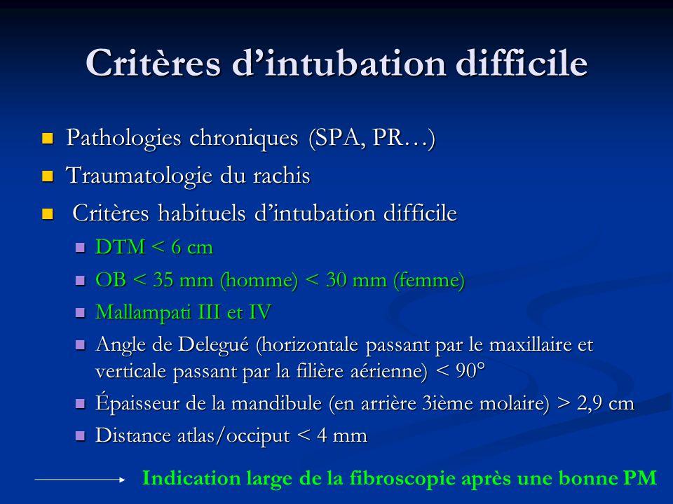 Critères d'intubation difficile
