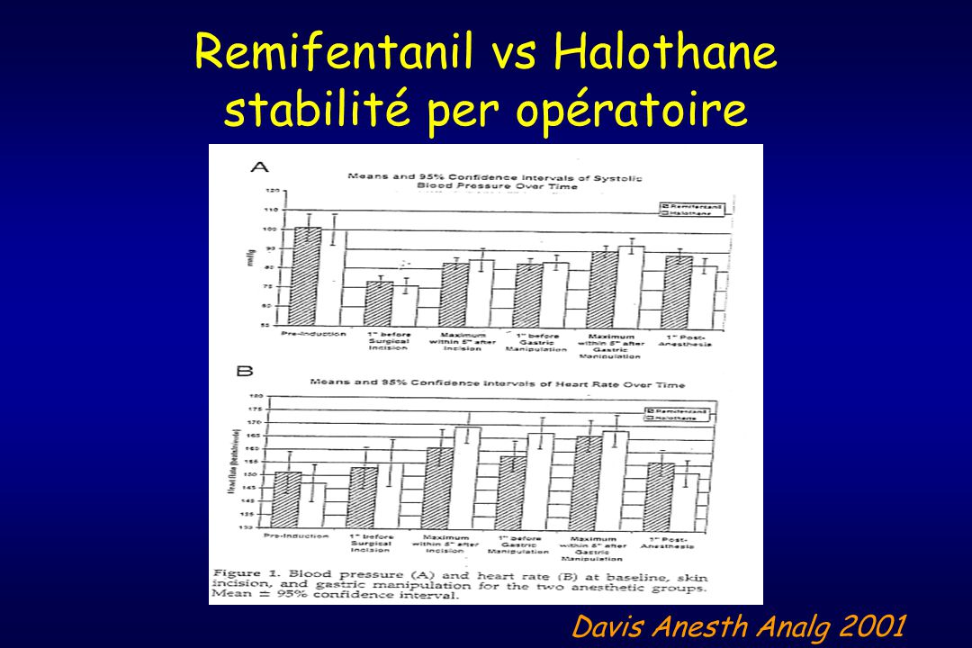 Remifentanil vs Halothane stabilité per opératoire