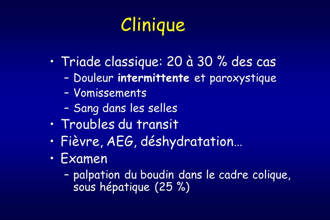 Clinique Triade classique: 20 à 30 % des cas Troubles du transit