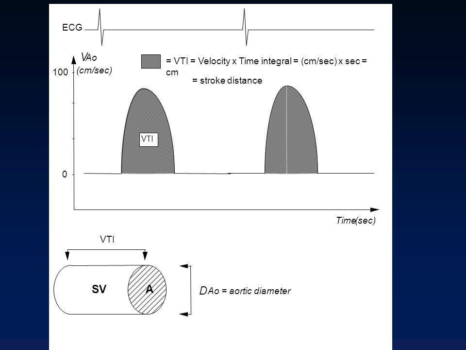 V SV A D ECG Ao = VTI = Velocity x Time integral = (cm/sec) x sec = cm