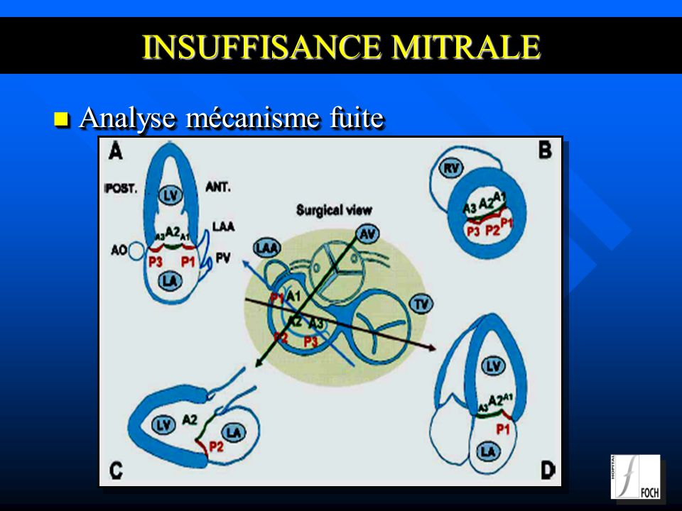 INSUFFISANCE MITRALE Analyse mécanisme fuite