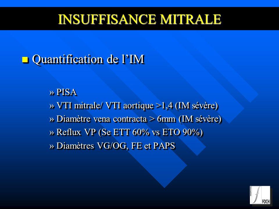 INSUFFISANCE MITRALE Quantification de l'IM PISA