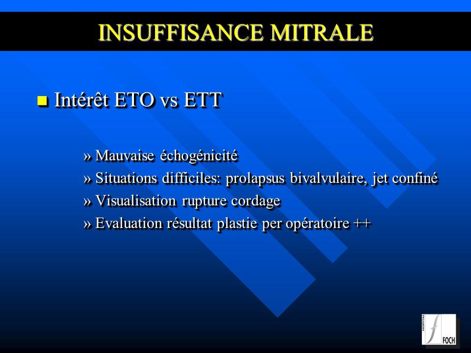 INSUFFISANCE MITRALE Intérêt ETO vs ETT Mauvaise échogénicité