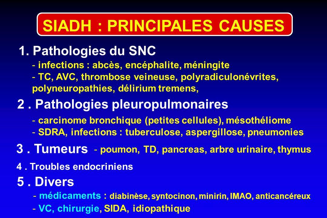 SIADH : PRINCIPALES CAUSES