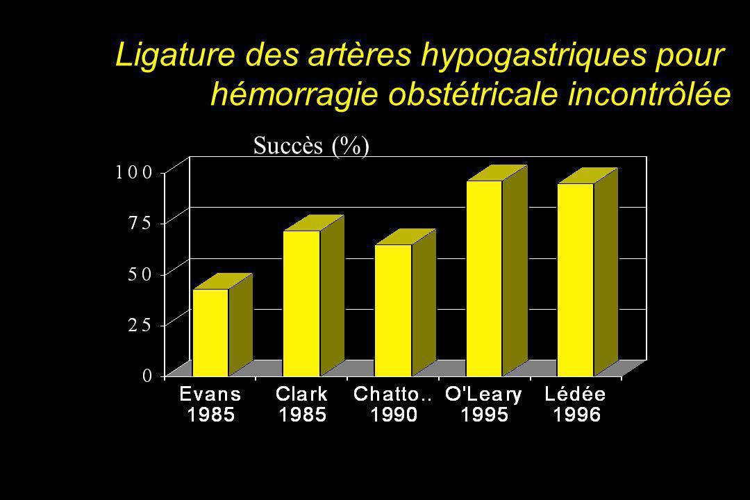 Ligature des artères hypogastriques pour