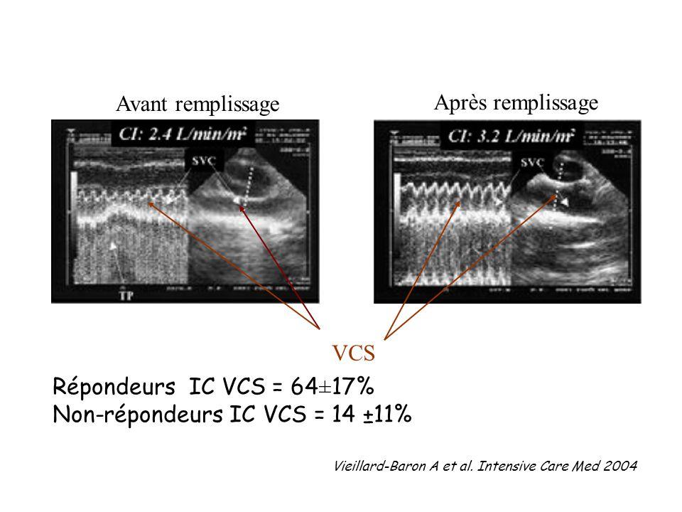 Non-répondeurs IC VCS = 14 ±11%