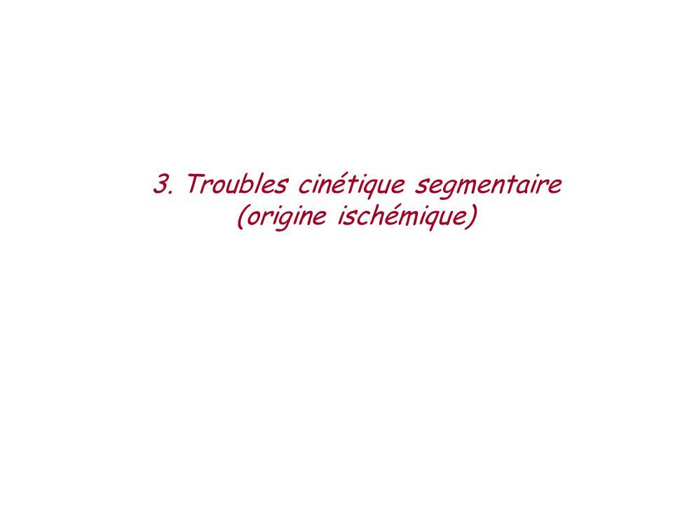 3. Troubles cinétique segmentaire (origine ischémique)