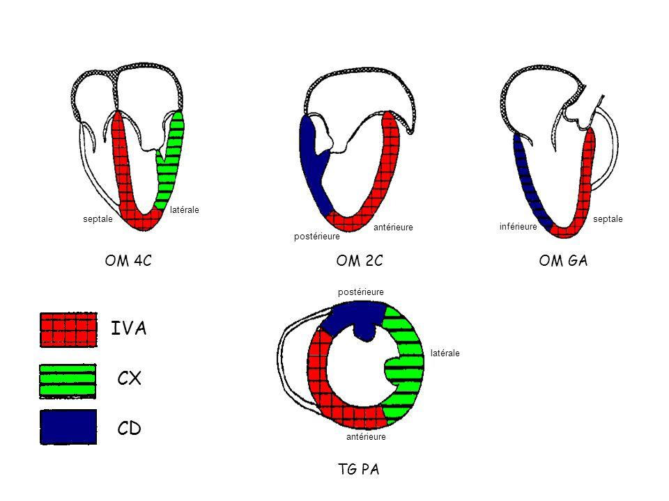 IVA CX CD OM 4C OM 2C OM GA TG PA latérale septale septale antérieure
