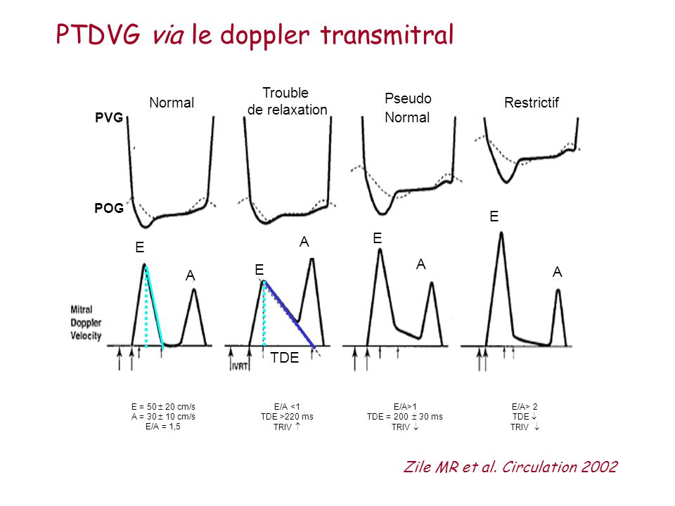 PTDVG via le doppler transmitral