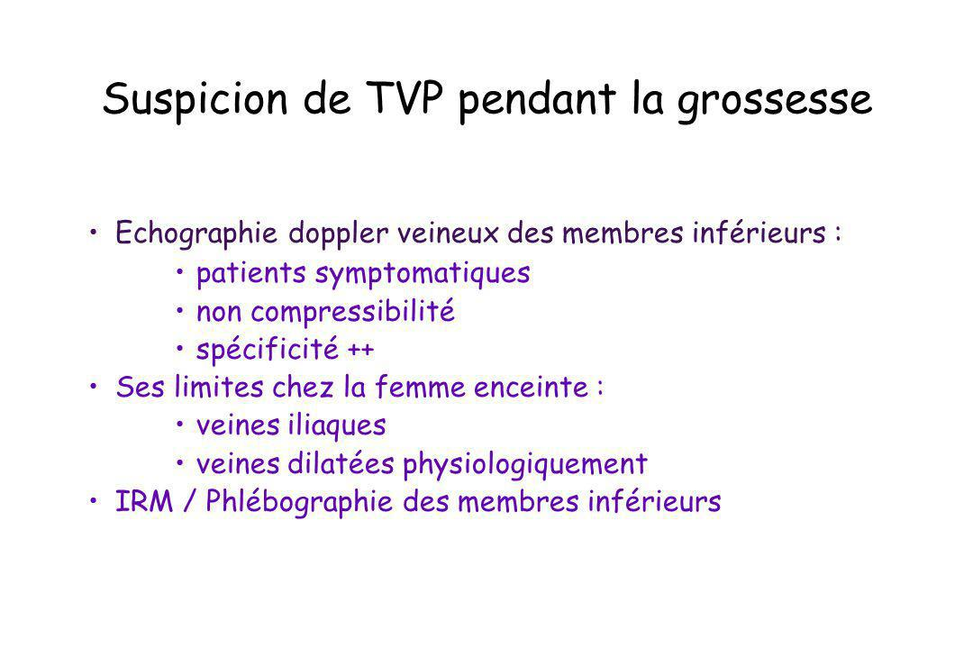 Suspicion de TVP pendant la grossesse