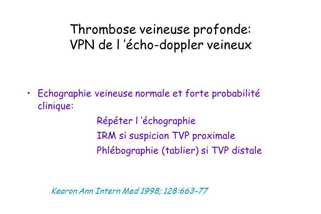 Thrombose veineuse profonde: VPN de l 'écho-doppler veineux