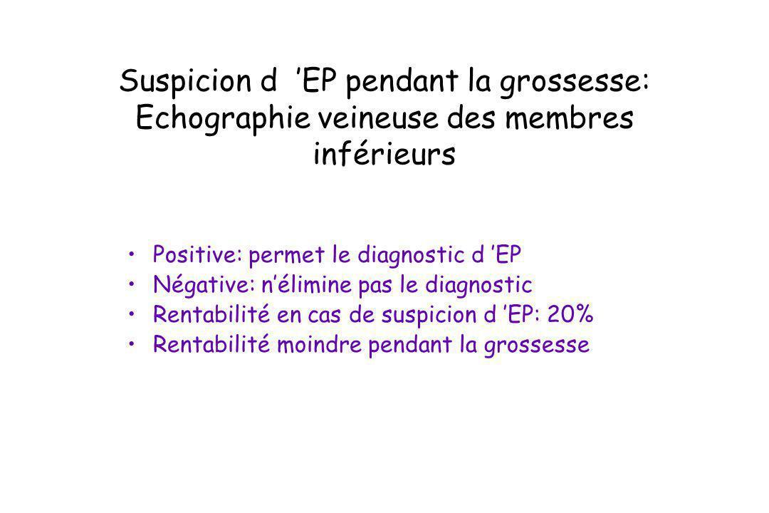 Suspicion d 'EP pendant la grossesse: Echographie veineuse des membres inférieurs