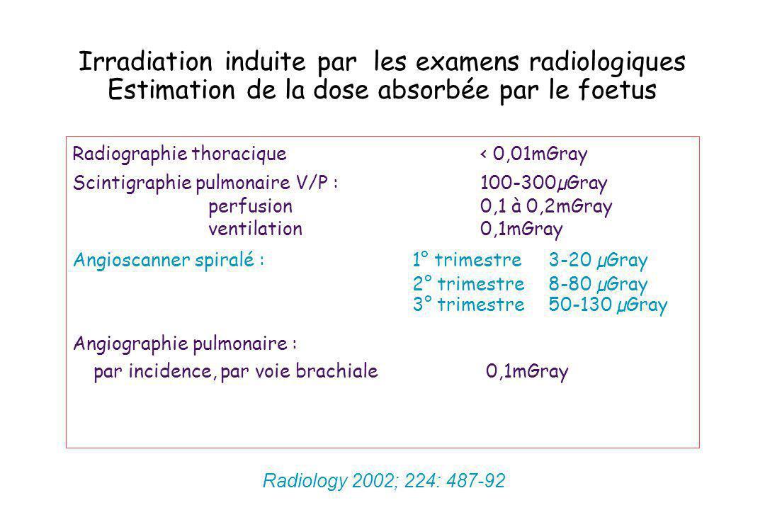 Irradiation induite par les examens radiologiques Estimation de la dose absorbée par le foetus