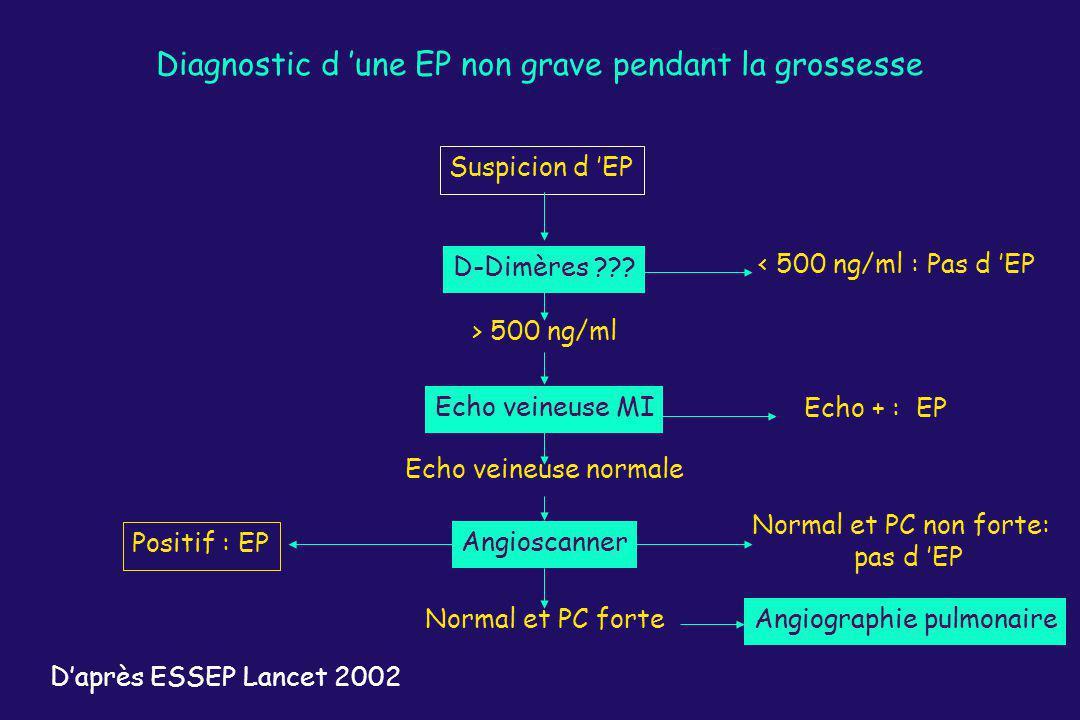 Diagnostic d 'une EP non grave pendant la grossesse