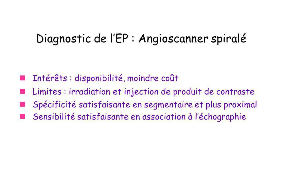Diagnostic de l'EP : Angioscanner spiralé
