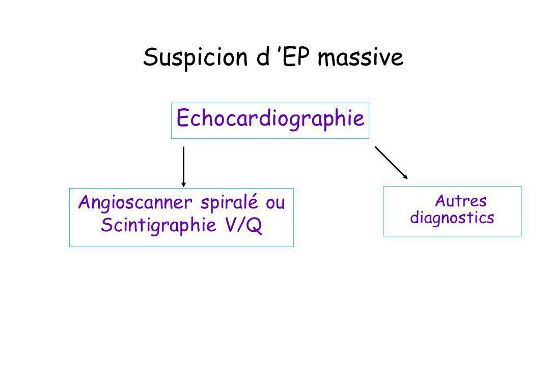 Suspicion d 'EP massive