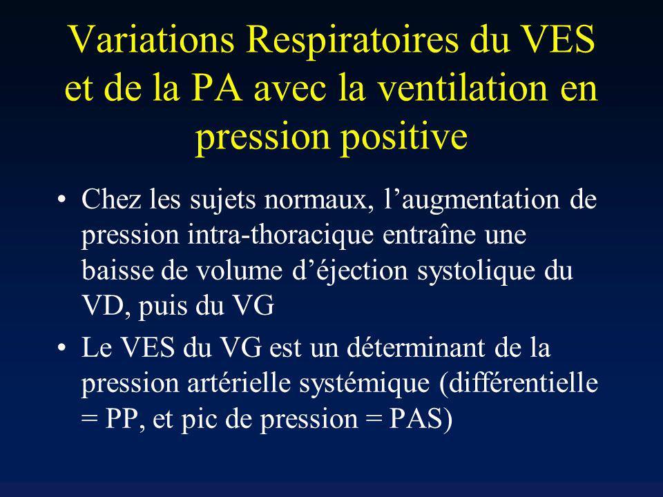 Variations Respiratoires du VES et de la PA avec la ventilation en pression positive