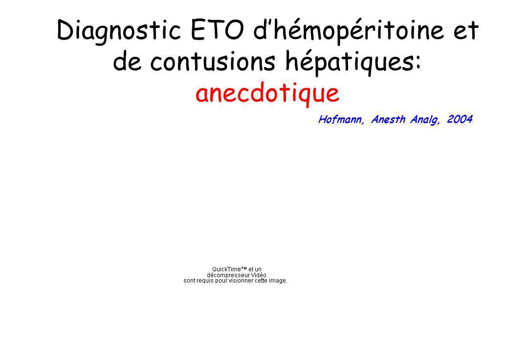 Diagnostic ETO d'hémopéritoine et de contusions hépatiques: anecdotique