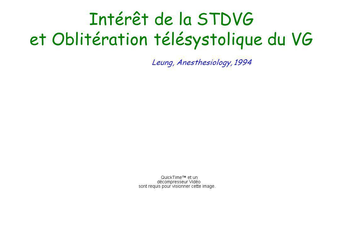 Intérêt de la STDVG et Oblitération télésystolique du VG