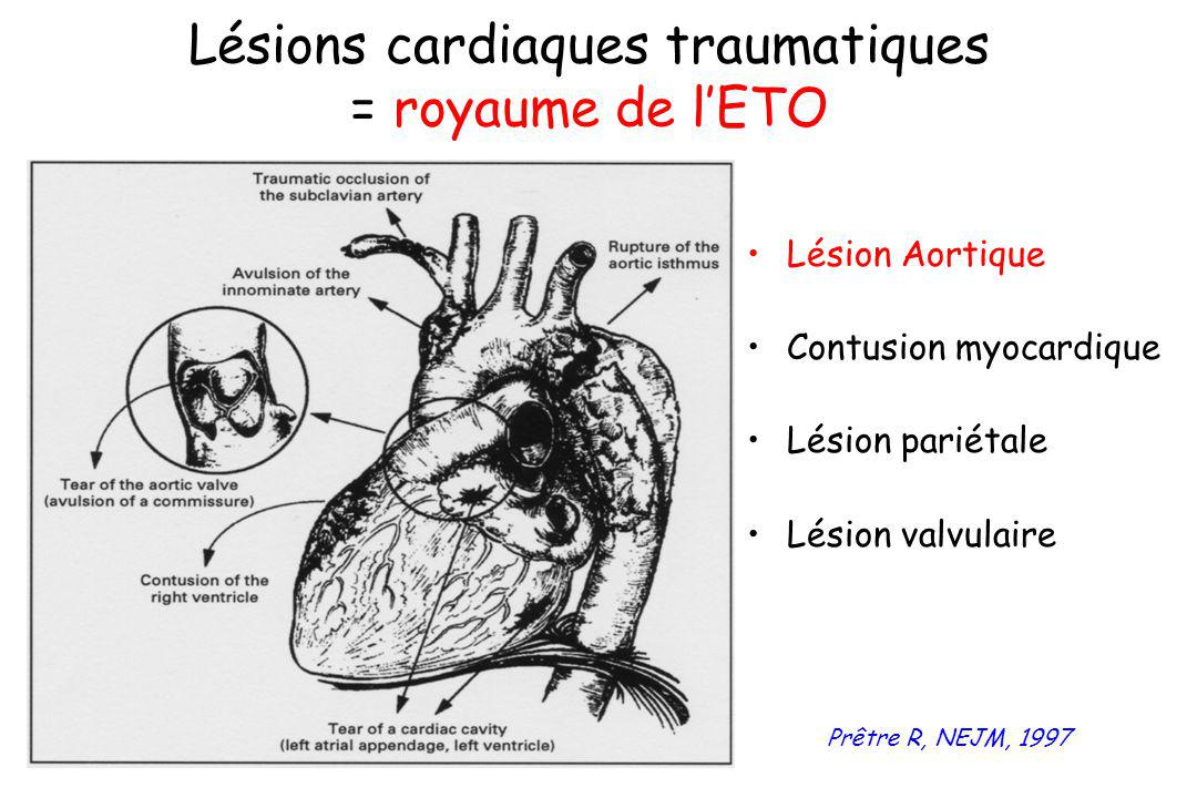 Lésions cardiaques traumatiques = royaume de l'ETO