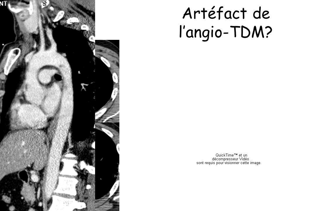 Artéfact de l'angio-TDM