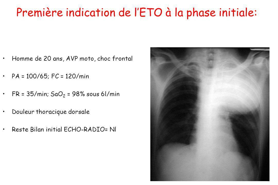 Première indication de l'ETO à la phase initiale: