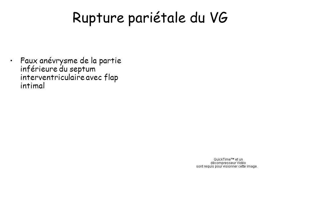 Rupture pariétale du VG