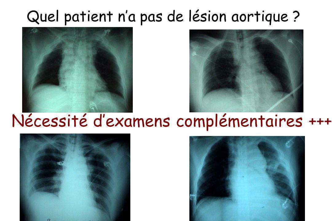 Quel patient n'a pas de lésion aortique