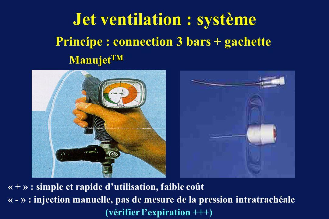 Jet ventilation : système Principe : connection 3 bars + gachette