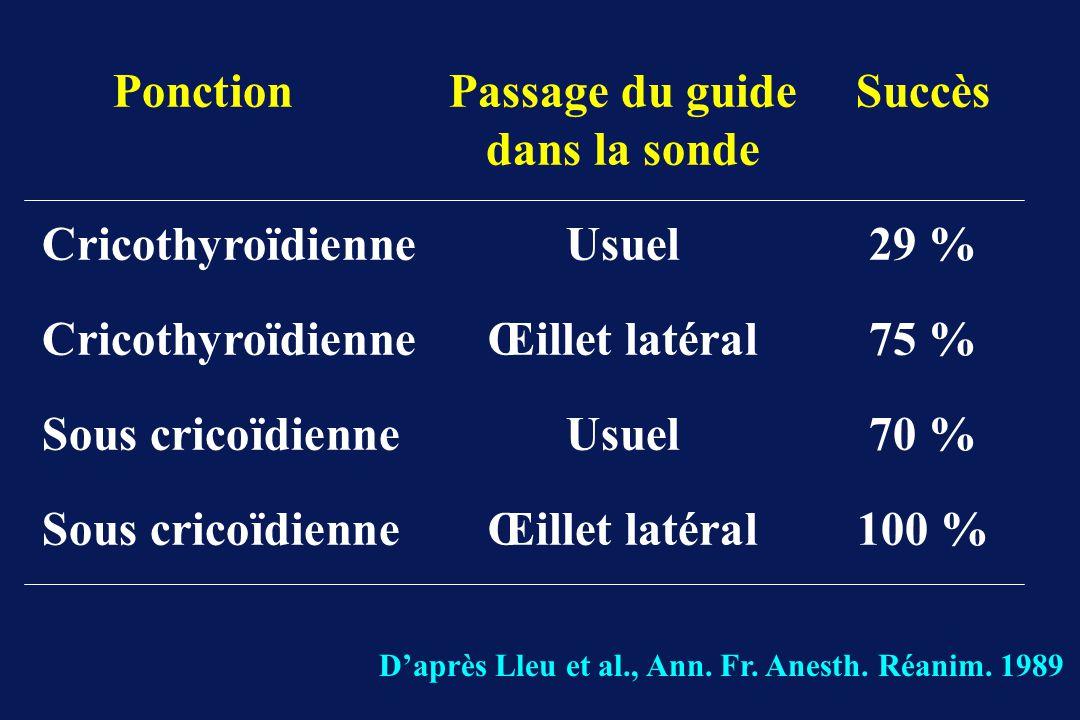 Ponction Passage du guide Succès dans la sonde