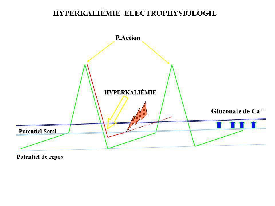 HYPERKALIÉMIE- ELECTROPHYSIOLOGIE