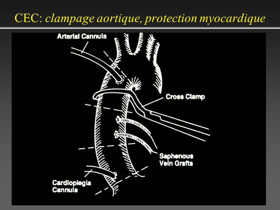 CEC: clampage aortique, protection myocardique