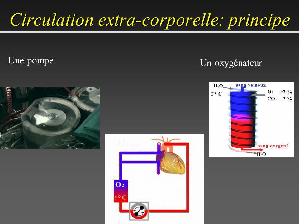 Circulation extra-corporelle: principe
