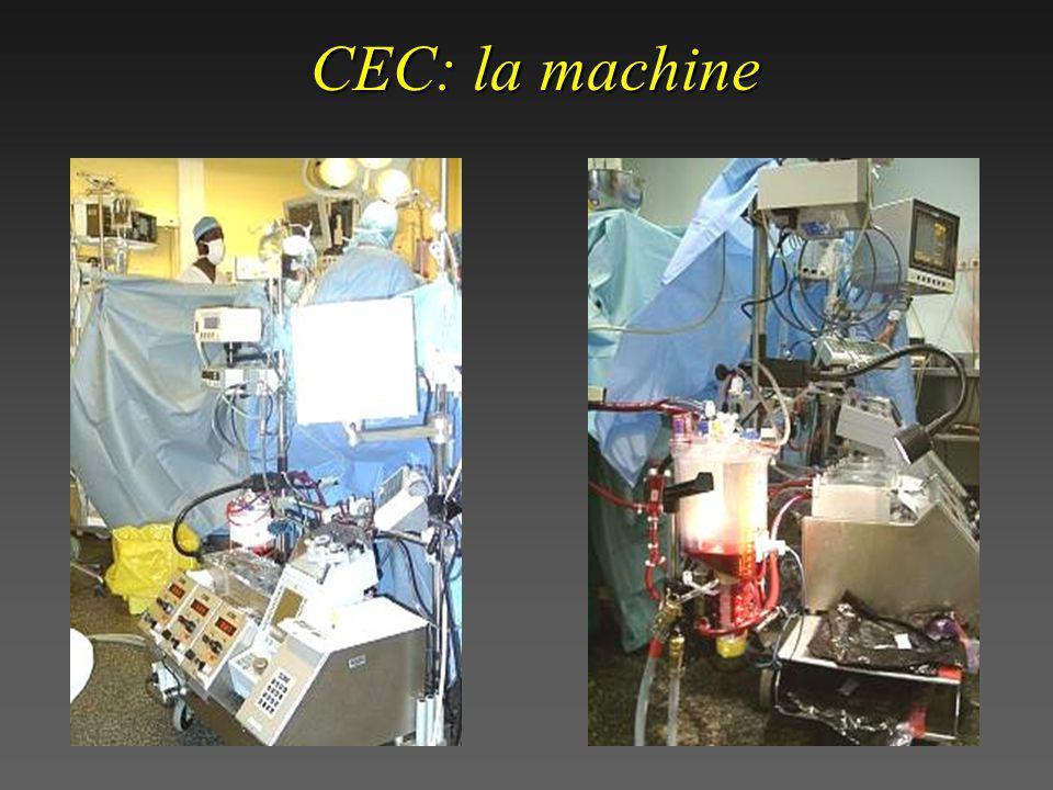 CEC: la machine