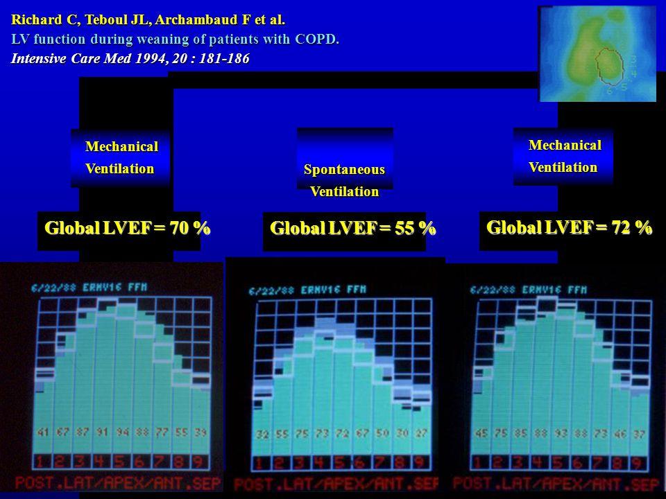 Global LVEF = 70 % Global LVEF = 55 % Global LVEF = 72 %