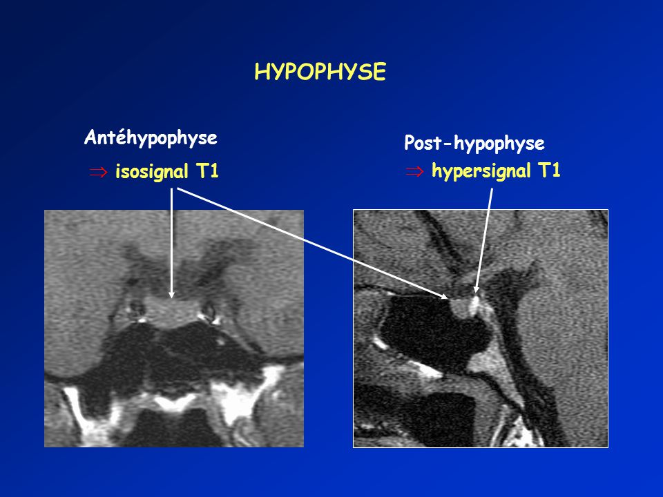 HYPOPHYSE Antéhypophyse Post-hypophyse  isosignal T1  hypersignal T1