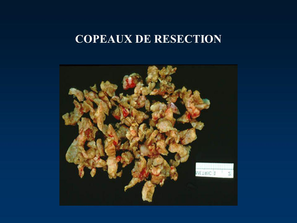 COPEAUX DE RESECTION