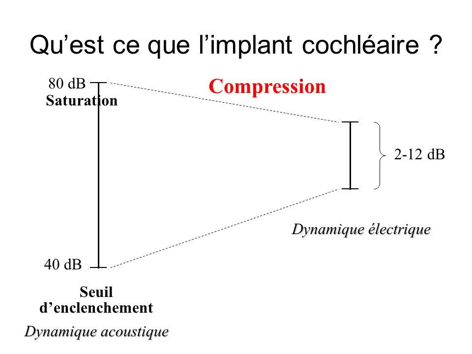 Qu'est ce que l'implant cochléaire