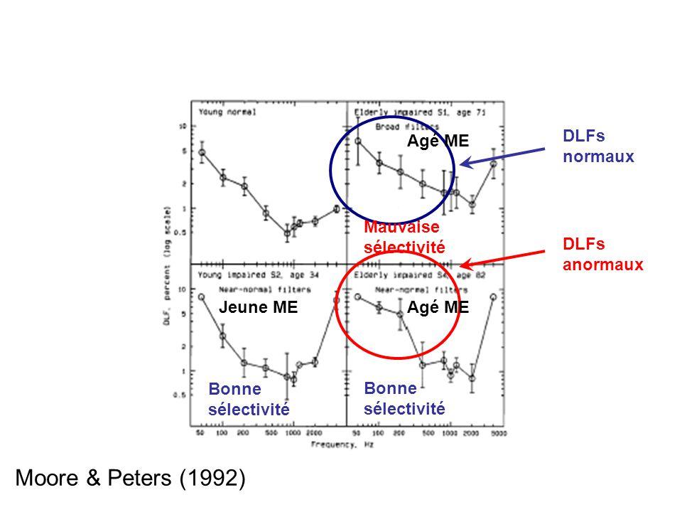 Moore & Peters (1992) DLFs normaux Agé ME Mauvaise sélectivité