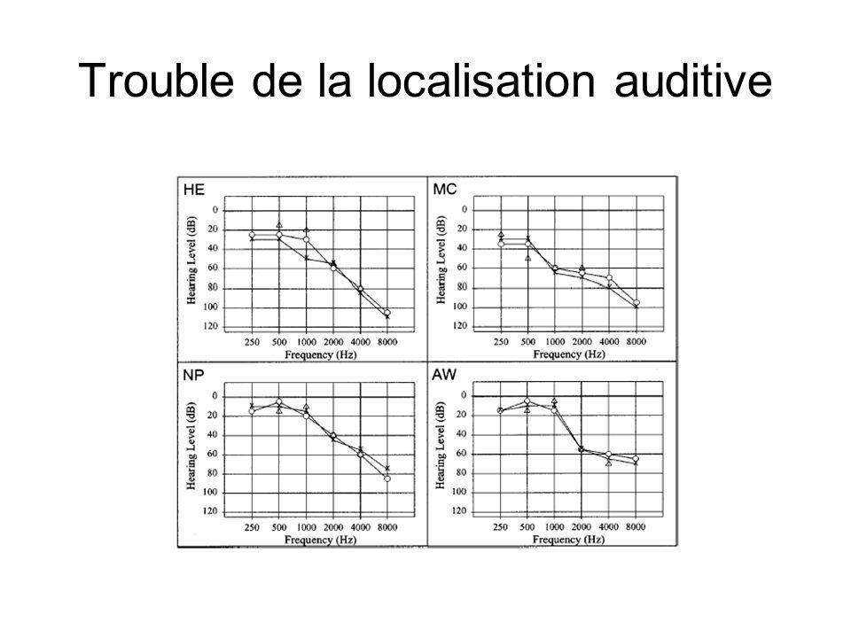 Trouble de la localisation auditive