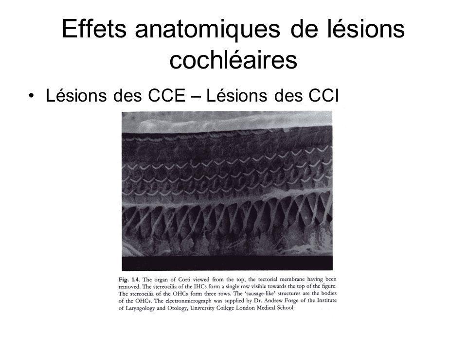 Effets anatomiques de lésions cochléaires
