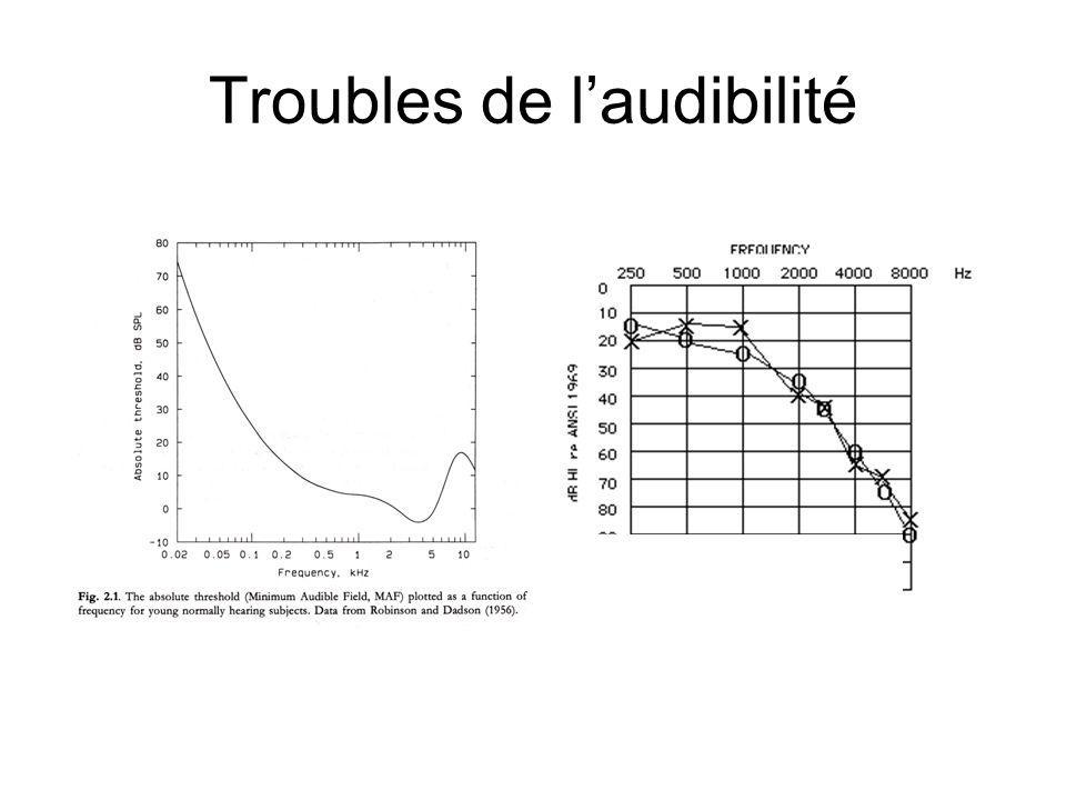 Troubles de l'audibilité