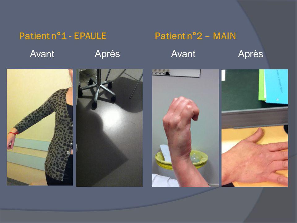 Patient n°1 - EPAULE Patient n°2 – MAIN Avant Après Avant Après