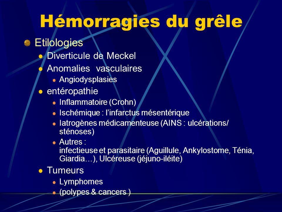 Hémorragies du grêle Etilologies Diverticule de Meckel