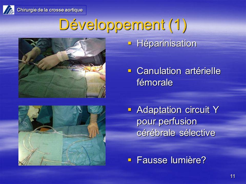 Développement (1) Héparinisation Canulation artérielle fémorale